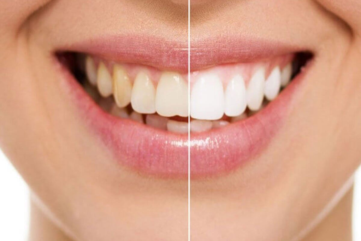 3 Options for Whitening Your Teeth
